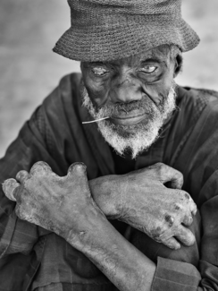 Man Suffering from Leprosy